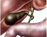 Острый и хронический холецистит у взрослых: симптомы и лечение
