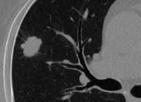 Периферический рак легкого