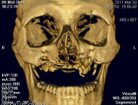 Процедура КТ лицевого скелета