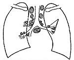 Внутригрудные лимфатические узлы