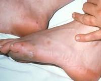 Как лечить гонорейный артрит? - Всезнайкин
