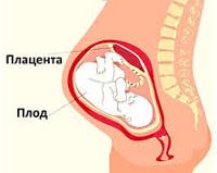 Гиперплазия плаценты
