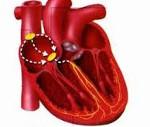 Дсу диагноз кардиолога