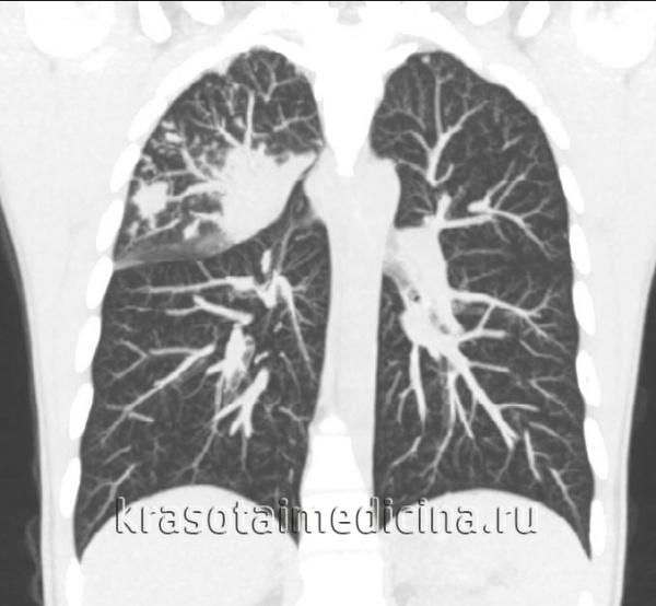 КТ органов грудной клетки. Множественные очаговые изменения верхней доле правого легкого (верифицированный туберкулез)