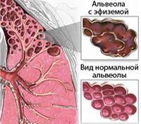 Эмфизема легкого рентген признаки