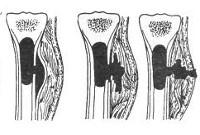 Гематогенный остеомиелит