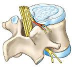 Грыжа грудного отдела позвоночника: симптомы и лечение межпозвоночной грыжи, чем опасна