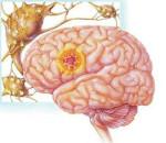 Структурная эпилепсия у детей
