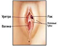 Рак вульвы