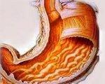 Болезнь оперированного желудка и лечение: демпинг-синдром после резекции желудка
