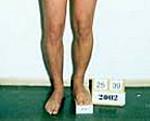 Разная длина ног лечение