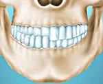 Перекрстный прикус со смещением нижней челюсти у человека
