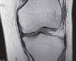 Изображение - Менисковая киста коленного сустава c7a99432e925c2ec0f58317ea3c3674f