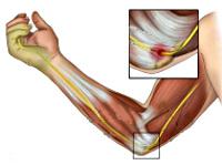 Изображение - Невропатия локтевого сустава cae983ed61f85853065a892cbcf913b0
