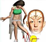 Гиперкинез: что это такое, симптоматика и лечение