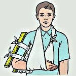 Перелом головчатого возвышения плечевой кости у детей со смещением