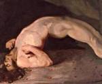 Признаки столбняка у человека после пореза