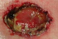 Аденокарцинома желудка