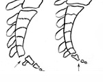 Симптомы и последствия перелома копчика