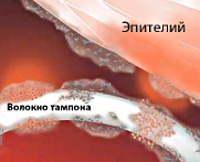 Синдром токсического шока