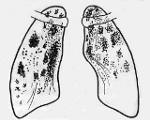 Диссеминированный туберкулез легких заразен или нет