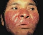 Туберкулезная волчанка лица