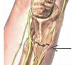 Что такое невропатия коленного сустава диагностика причины и лечение