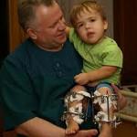Как проявляется и лечится хондродисплазия у детей