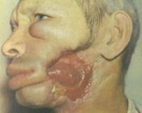 Злокачественные опухоли полости рта