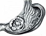Аденокарцинома желудка - причины, симптомы, диагностика и лечение, прогноз