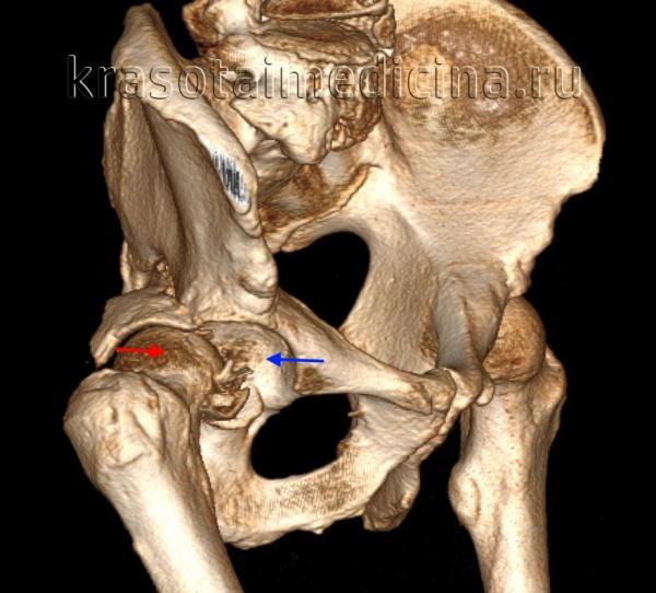 КТ таза. 3D-реконструкция. Красная стрелка – вывихнутая головка бедренной кости, синяя стрелка – «пустая» вертлужная впадина.