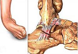 Изображение - Повреждение связок левого голеностопного сустава d566653ce0fe303010d3676aa8833913