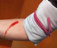 Наружное кровотечение