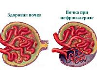 Что такое нефросклероз почек: симптомы и методы лечения