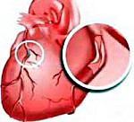 d8f0dded61ec8bace104a453747bb527 - Coronary heart attack causes symptoms and prevention