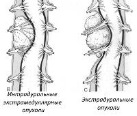 Экстрамедуллярные опухоли спинного мозга