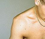 Симптомы вывиха плечевого сустава