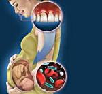 Профилактика кариеса у беременных