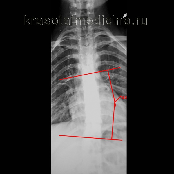 Рентгенография грудного отдела позвоночника. Левосторонний сколиоз 2-й ст. с углом дуги около 15,8 градусов (по Коббу), с центром на Th9.