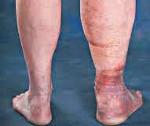 Посттромбофлебитический синдром: причины, симптомы и лечение
