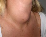 Тиреоидит щитовидной железы: виды, симптомы и лечение