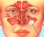 Киста в носовой пазухе симптомы и лечение