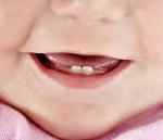 Прорезывание молочных зубов у детей