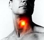 Ларинготрахеит у взрослых симптомы