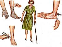 Хроническая воспалительная демиелинизирующая полиневропатия