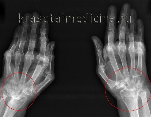 Рентгенография кистей. Поражения суставов при ревматоидном артрите (IV стадия по Штейнброкеру). Костный анкилоз; множественные эрозии суставных поверхностей; подвывих в суставах; остеопороз.