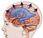 Симптомы наружной гидроцефалии у взрослых