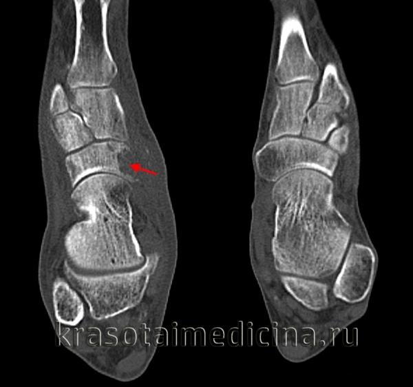 КТ стоп. Признаки остеохондропатии ладьевидной кости стопы (болезнь Келера-I).