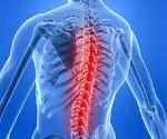 Спинальный арахноидит - причины, симптомы, диагностика и лечение