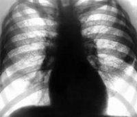 Процедура Рентгенография грудной клетки